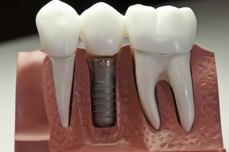 Dental Implants - Cosmetic Dentistry in Medford MA | Wellington